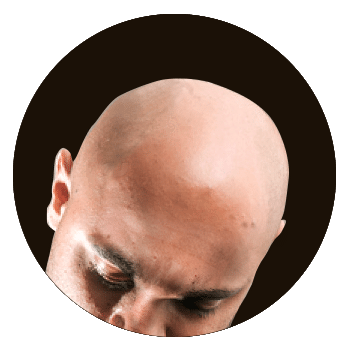 before scalp micropigmentation in Birmingham uk photo of balding man
