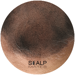 Q & A first session scalp micropigmentation in birmingham at scalpmates