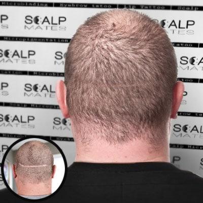 Scalp micropigmentation scar camouflage fix in Birmingham UK