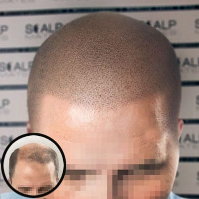 before and after Scap micropigmentation smp for male pattern baldness, bald head tattoo for balding man