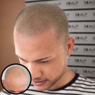 before and after Scap micropigmentation smp for male pattern baldness, bald head tattoo for man with hair loss