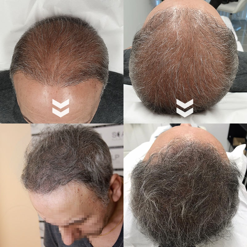 before and after Scap micropigmentation smp for male pattern baldness, hair thinning head tattoo for middle age man with gray hair scalp mates