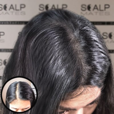 before and after scalp micropigmentation in birmingham uk for young woman with thinning hair at the top