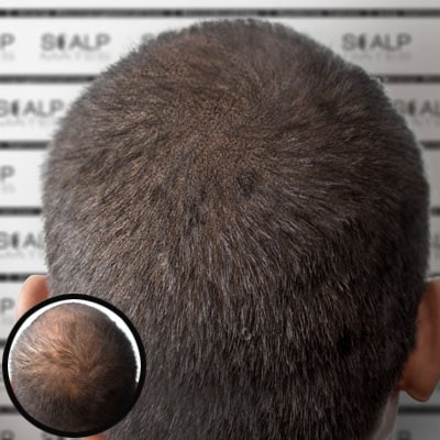 before and after scalp micropigmentation thinning hair in men in Birmingham UK