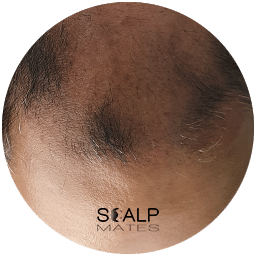 free consultation for Scalp micropigmentation SMP with mockup at scalpmates clinic in birmingham