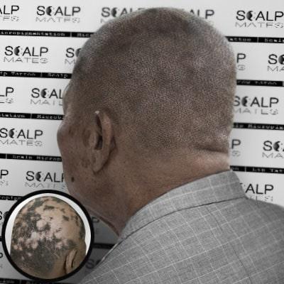 scalp micropigmentation for alopecia areata in birmingham uk, scalpmates