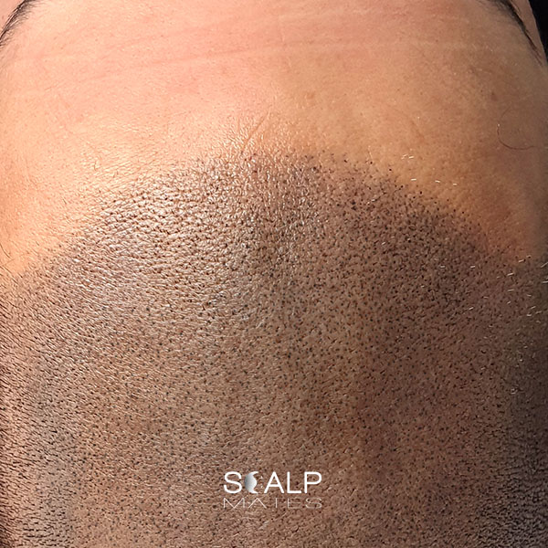 after Scap micropigmentation smp for male pattern baldness, bald head tattoo for man with hair loss on top of the head