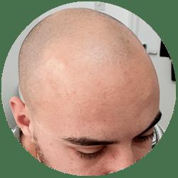 balding man with receding hairline