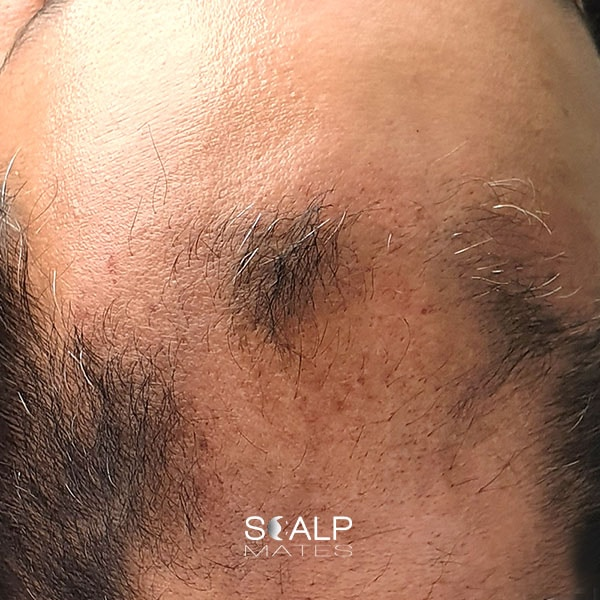before Scap micropigmentation smp for male pattern baldness, bald head tattoo for man with hair loss on top of the head