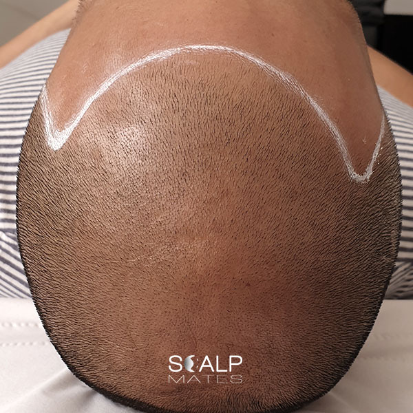 before Scap micropigmentation smp for male pattern baldness, bald head tattoo for man with hair loss