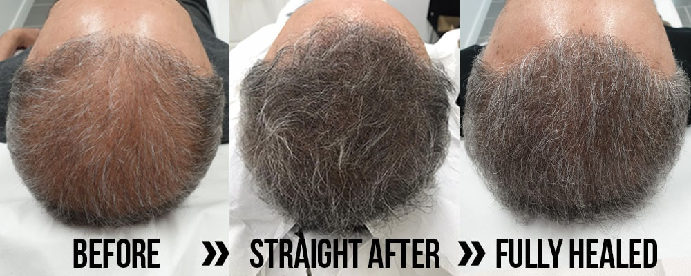 before, after and fully healed scalp micropigmentation for hair desnity, hair volume, thinning