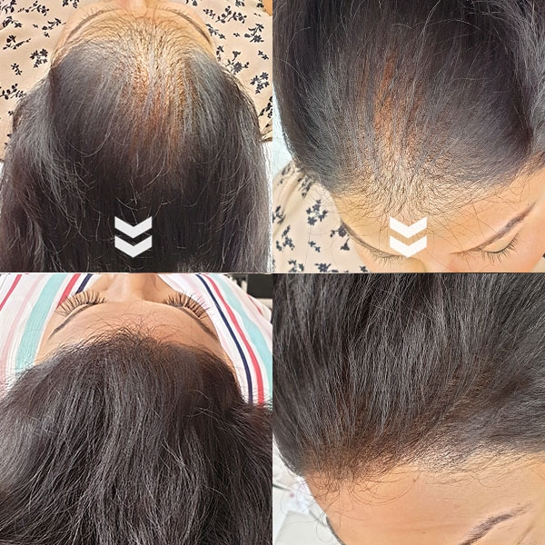 before and after Scap micropigmentation smp for female pattern baldness, hair thinning solutions asian woman