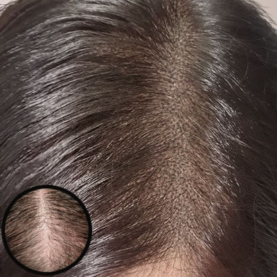 before and after Scap micropigmentation smp for female pattern baldness, hair thinning treatment, build hair density