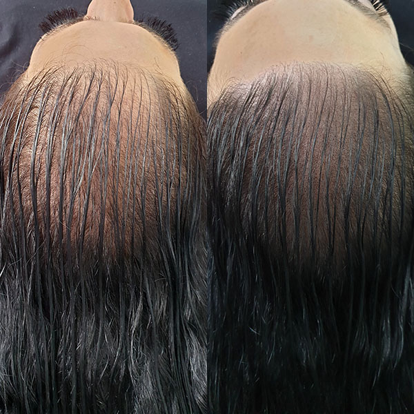 before and after Scap micropigmentation smp for female pattern baldness, hair thinning treatment client kay