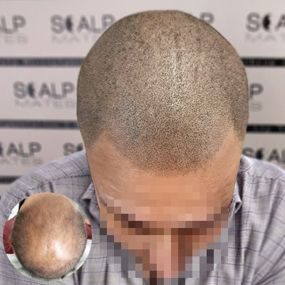 before and after Scap micropigmentation smp for male pattern baldness, bald head tattoo for man iwth hair loss on top of the head 1
