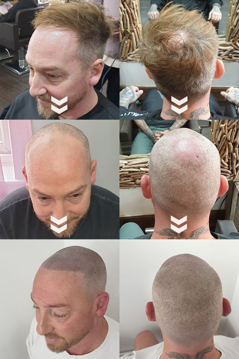 before and after Scap micropigmentation smp for male pattern baldness, bald head tattoo for young man with hair loss at the crown and hairline loss