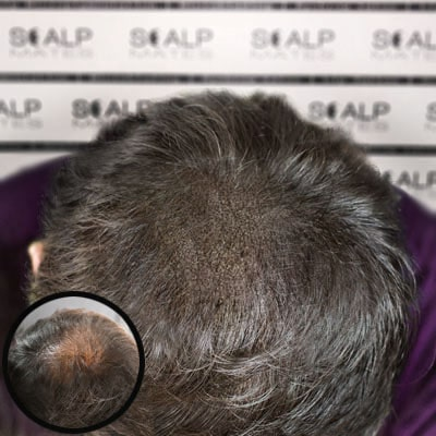 before and after Scap micropigmentation smp for male pattern baldness, hair thinning head tattoo for middle age man with gray hair