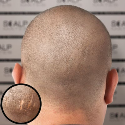before and after Scap micropigmentation smp for scar camouflage, hair transplant scar covered, bald head tattoo for man density