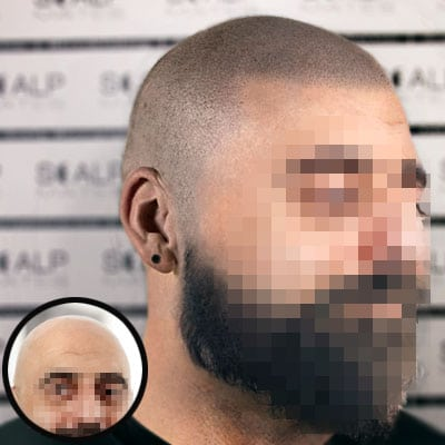 before and after scalp micropigmentation balding photos in Birmingham UK