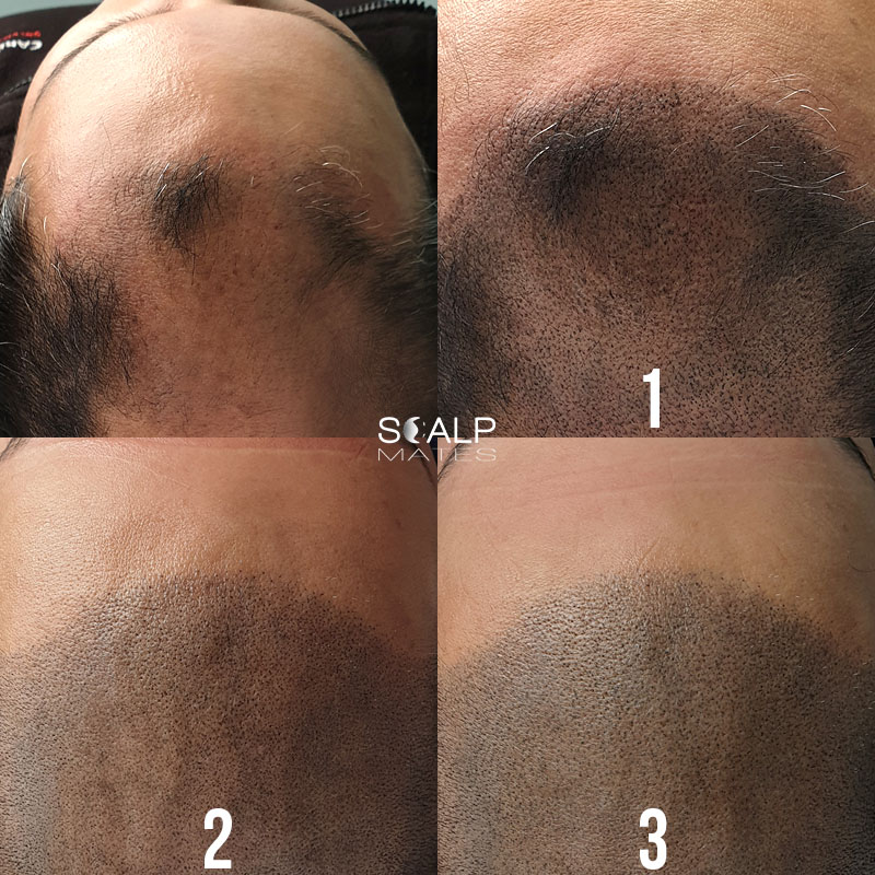 how does scalp micropigmentation work, what is the process, more about smp for hair loss and balding