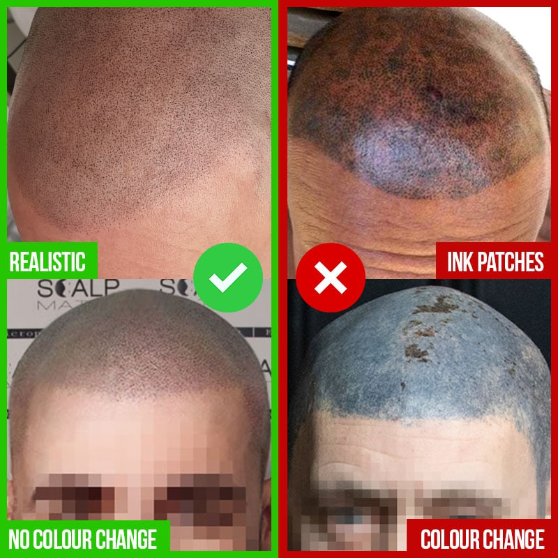 is scalp micropigmentation a tattoo, it is a cosmetic tattoo uses a pigment instead of ink and different process, scalp mates clinic in bimingham UK