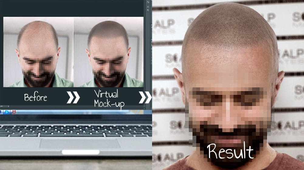 scalp mates clinic offers scalp micropigmentation for hair loss and balding men in birmingham uk