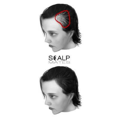 scalp micropigmentation cost SMP for female hair loss top hair thinning at the temples