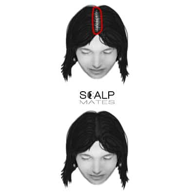 scalp micropigmentation cost SMP for female hair loss top hair thinning ludwig scale 1