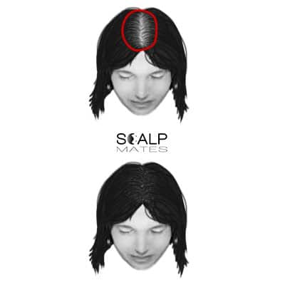 scalp micropigmentation cost SMP for female hair loss top hair thinning ludwig scale 2