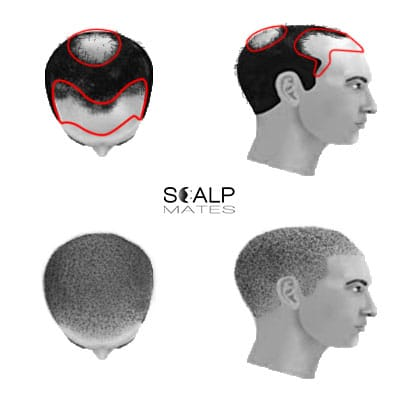 scalp micropigmentation cost SMP for male hair loss Norwood scale 4