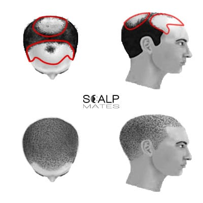 scalp micropigmentation cost SMP for male hair loss Norwood scale 5