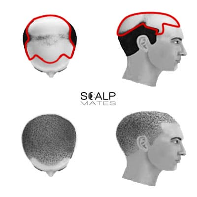 scalp micropigmentation cost SMP for male hair loss Norwood scale 7