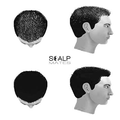 scalp micropigmentation SMP for male hair loss general hair thinning