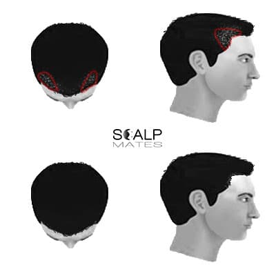 scalp micropigmentation SMP for male hair loss hair thinning Norwood scale 2