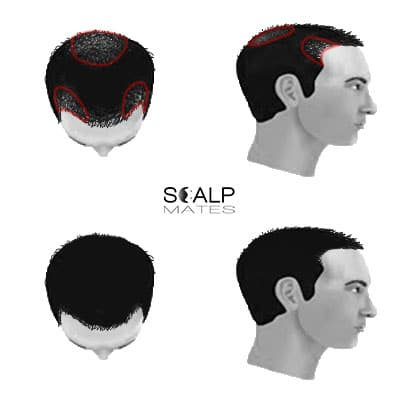 scalp micropigmentation cost SMP for male hair loss hair thinning Norwood scale 3 vertex