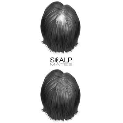 scalp micropigmentation cost SMP for scarring alopecia areata female, head scar camouflage, scar repair