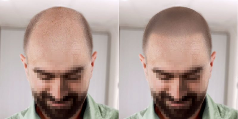 scalp micropigmentation virtual mockup to show how hairline would look on a bald man