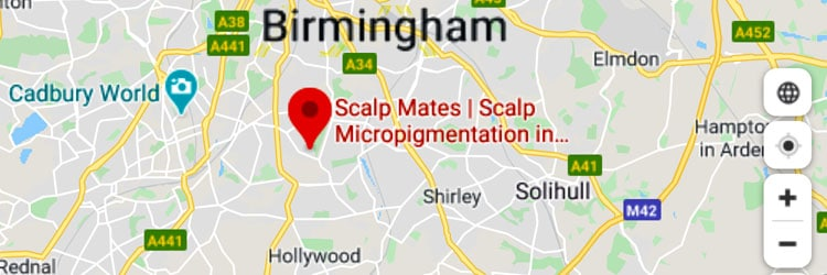 scalpmates scalp micropigmentation birmingham uk google maps 1