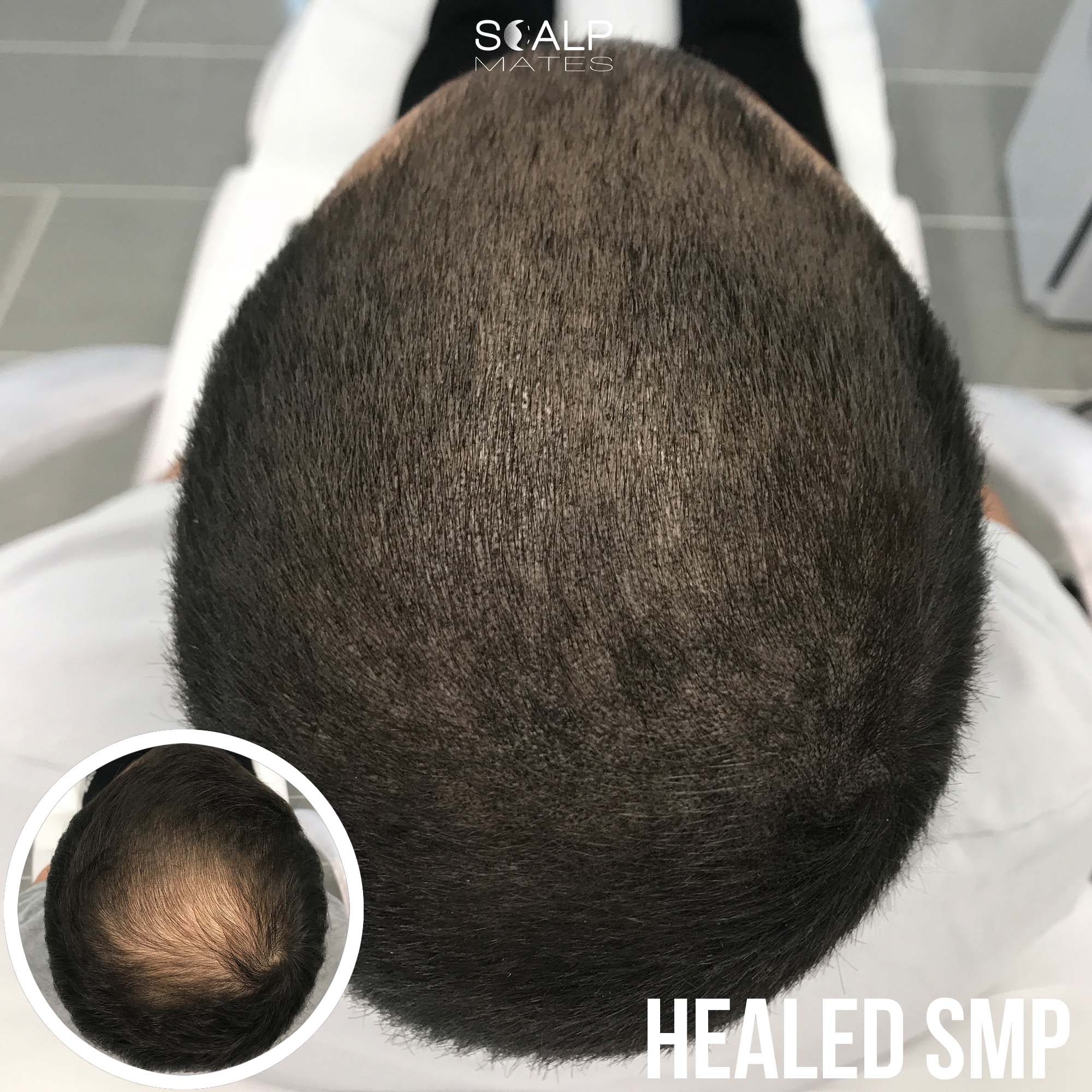 before and after Scap micropigmentation smp for hair thinning in men at Scalp Mates in Kings Heath, Birmingham, UK