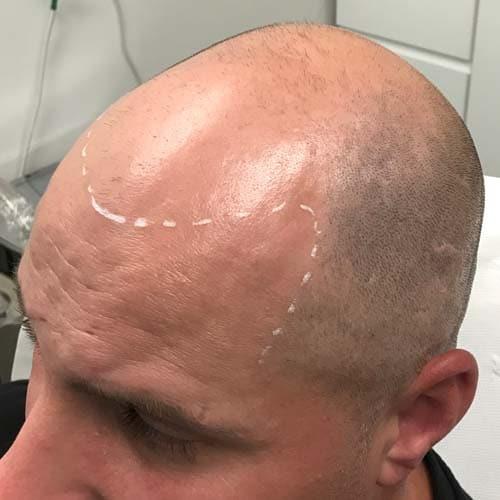 Norwood 7 hair loss