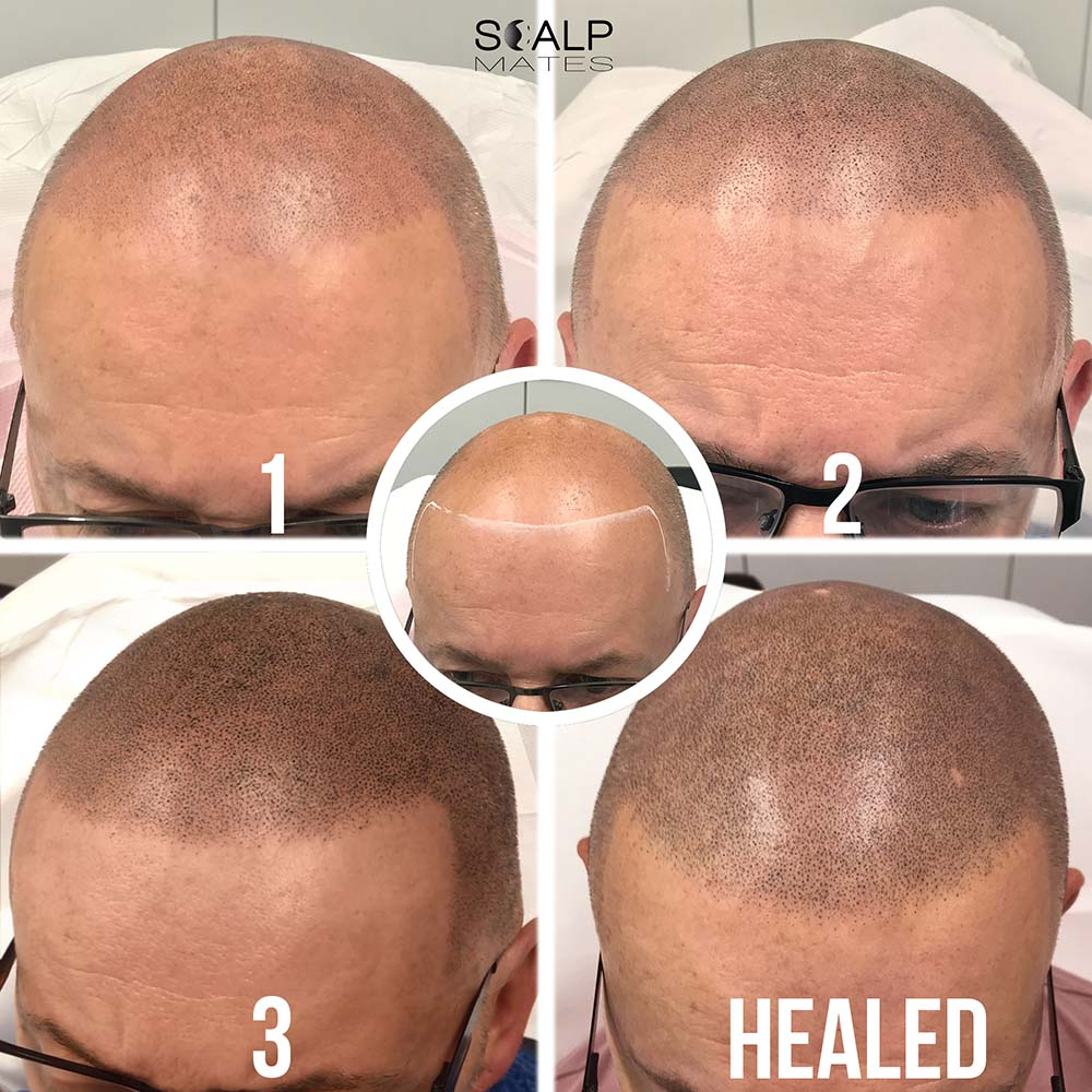 before and after Scalp Micropigmentation SMP process for bald head tattoo in Birmingham UK