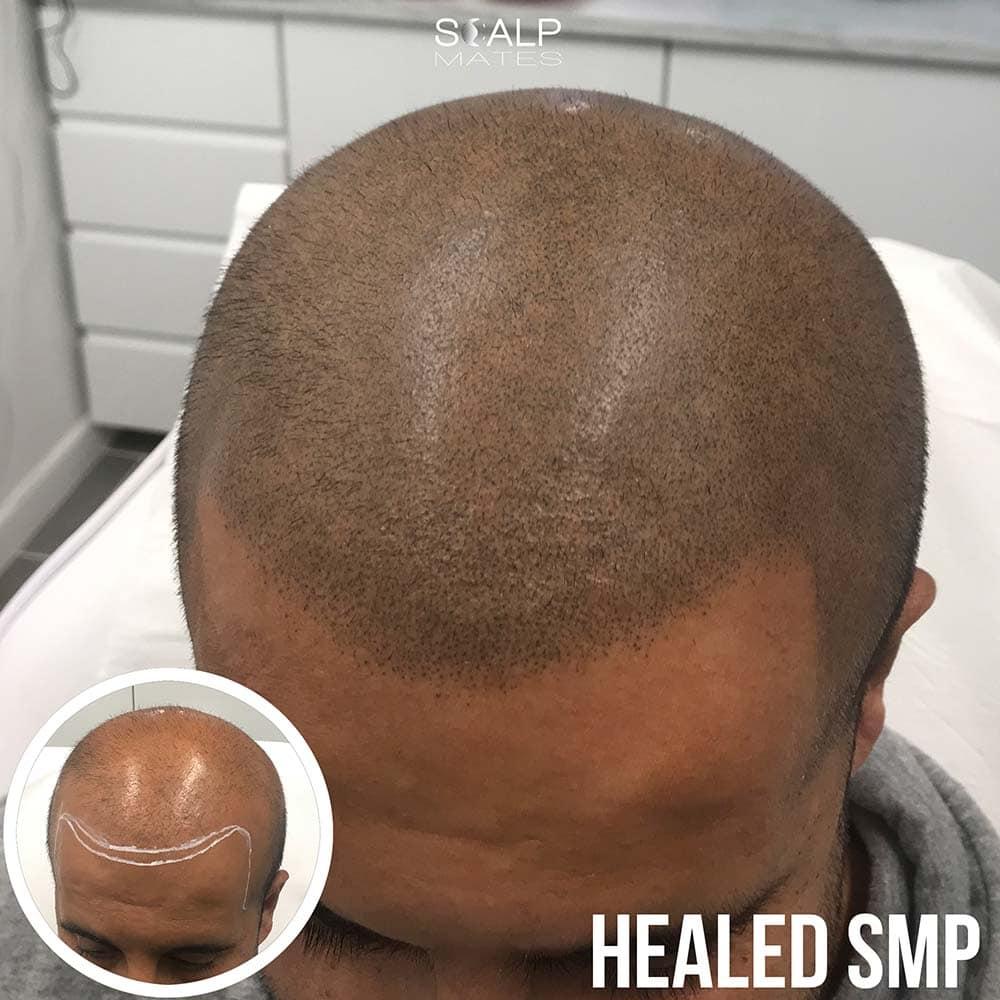 Scalp micropigmentation in birmingham healed smp hair tattoo