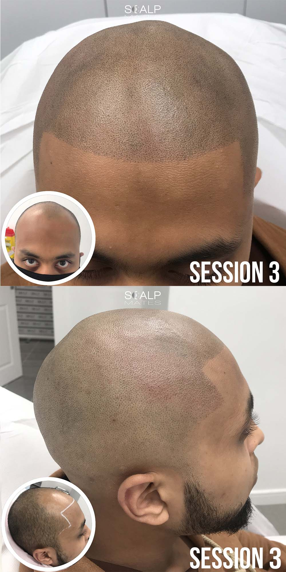 before and after scalp micropigmentation; smp in birmingham uk; hair loss; balding; bald head; alopecia; Hair tattoo on bald head;Scalp Mates; scalp micropigmentation cost uk;