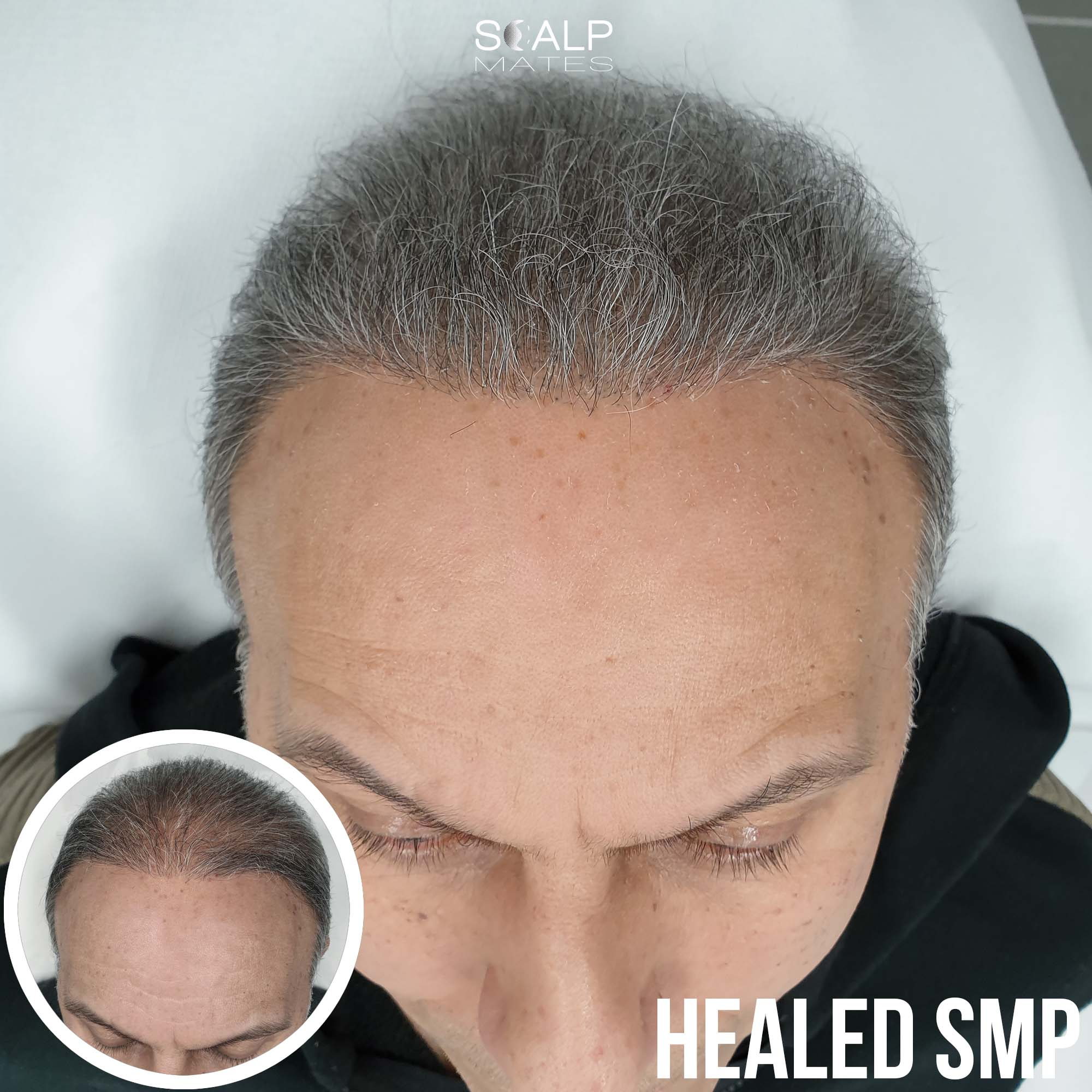before and after Scap micropigmentation smp for hair thinning in men