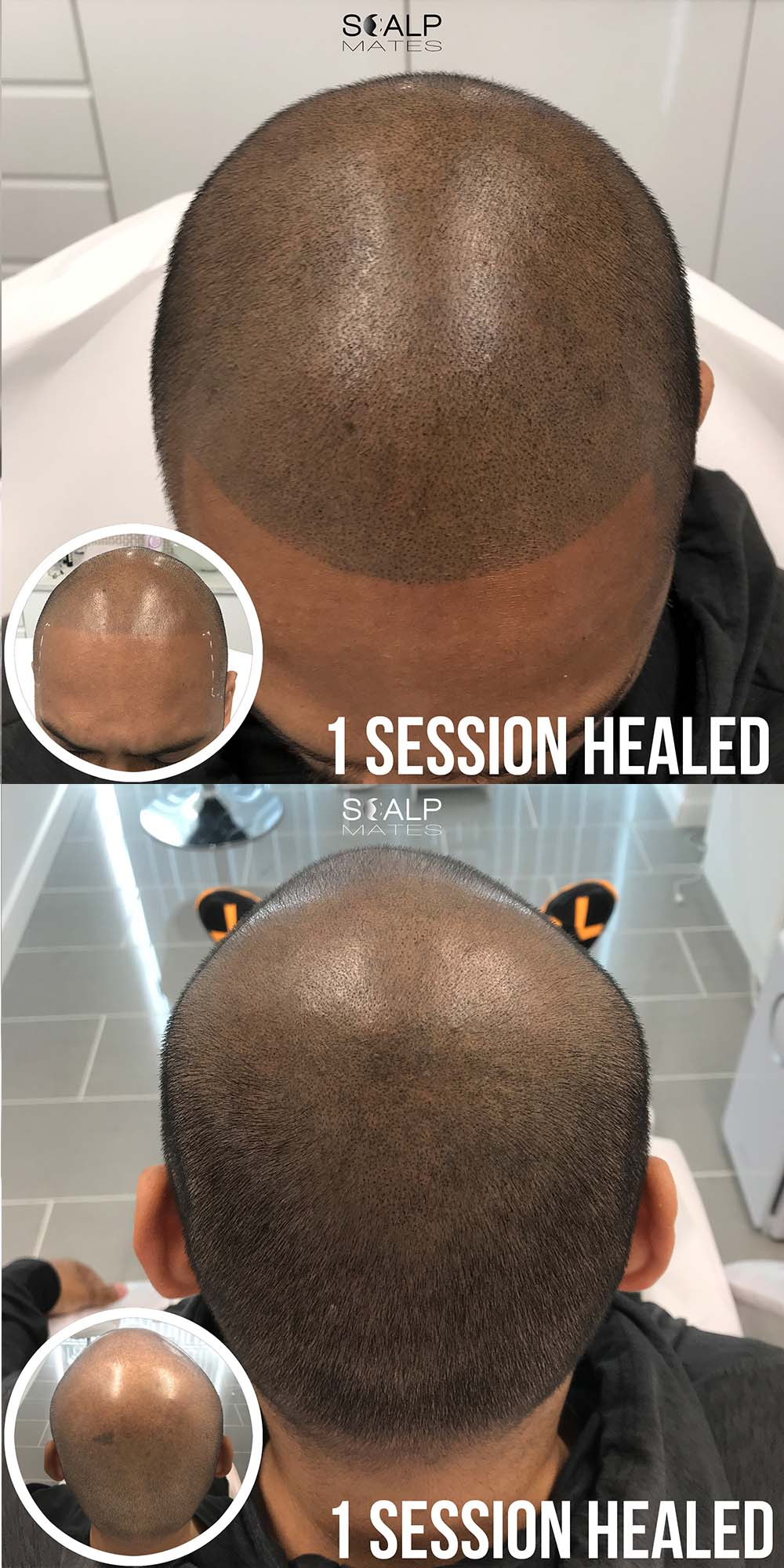 before and after scalp micropigmentation; smp in birmingham uk