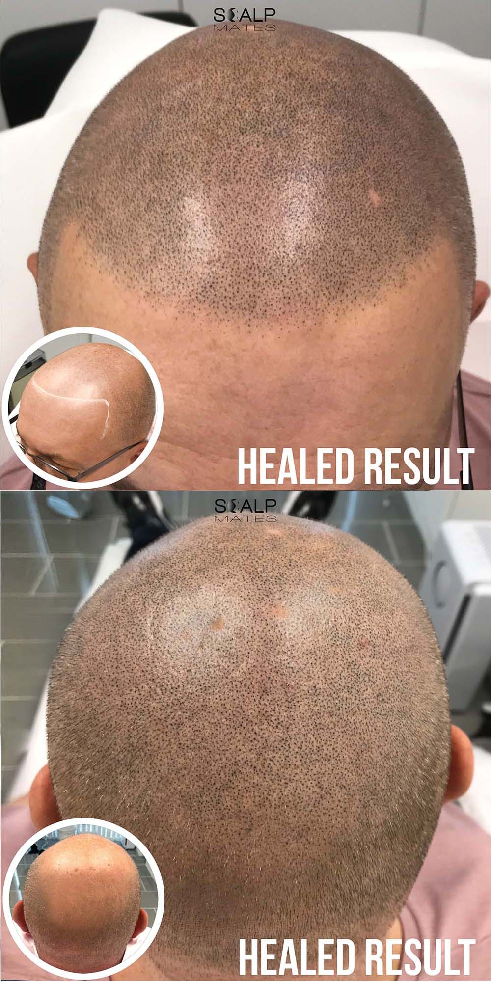 Hair tattoo on head   before and after Scap micropigmentation   SMP for male pattern baldness   bald head tattoo to create a full head of buzzed hair   Scalp Mates in Kings Heath, Birmingham, UK