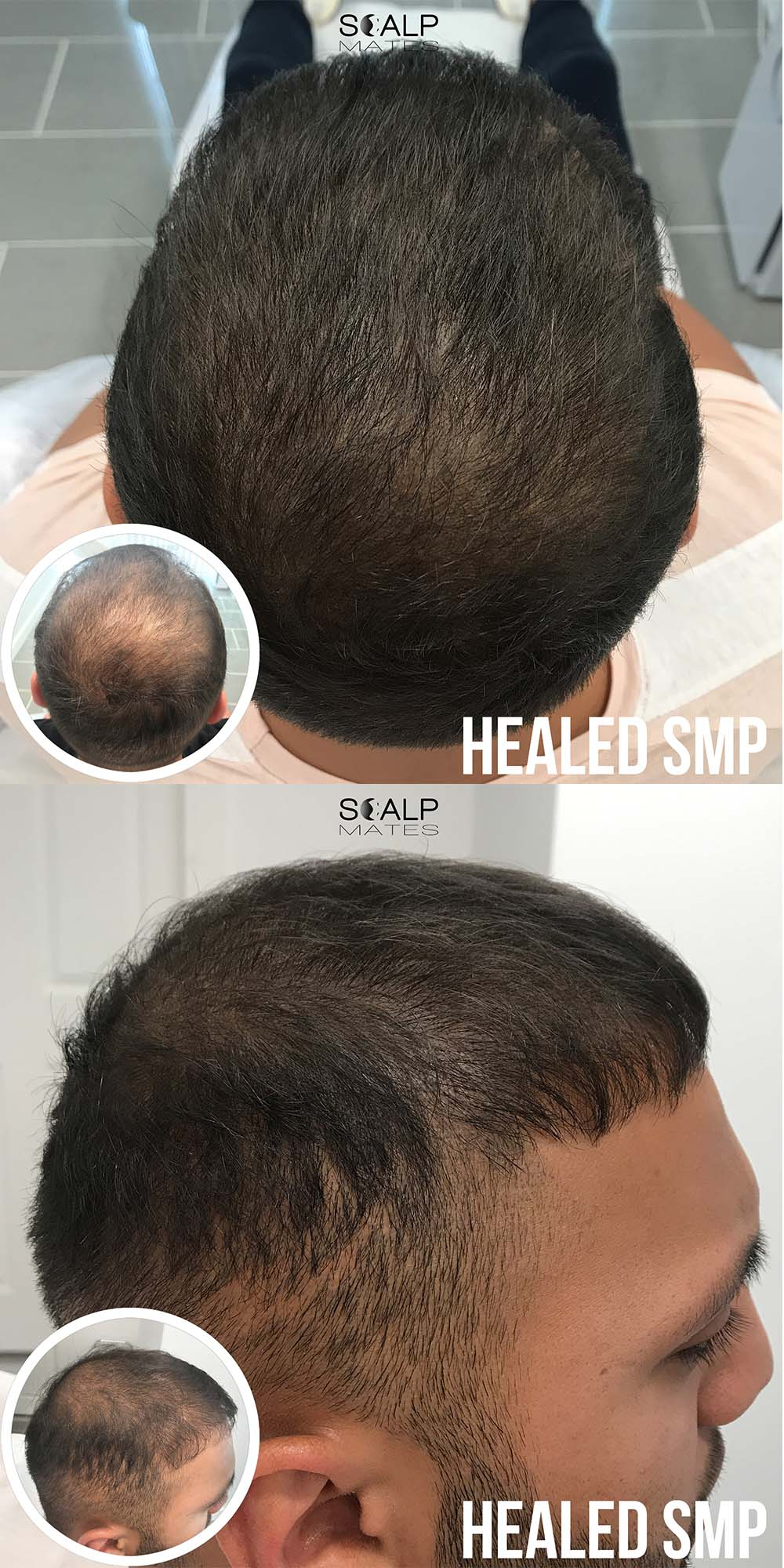 hair tattoo on head in Birmingham, before and after Scap micropigmentation smp for hair thinning in men, add density to thin hair at Scalp Mates in Kings Heath, Birmingham, UK