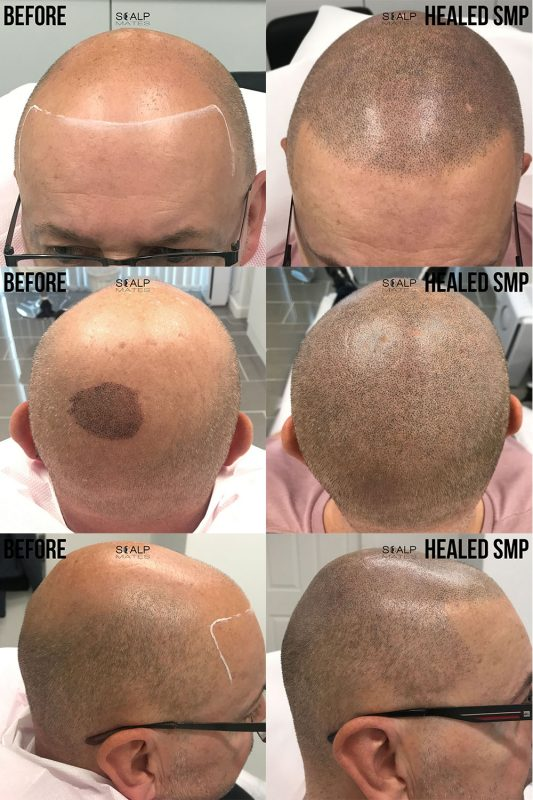 before and after scalp micropigmentation smp for bald head at scalpmates in birmingham uk