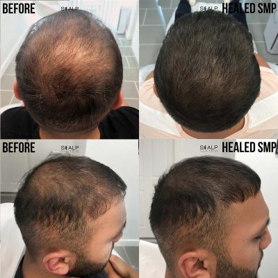 before and after scalp micropigmentation smp in birmingham UK for hair density