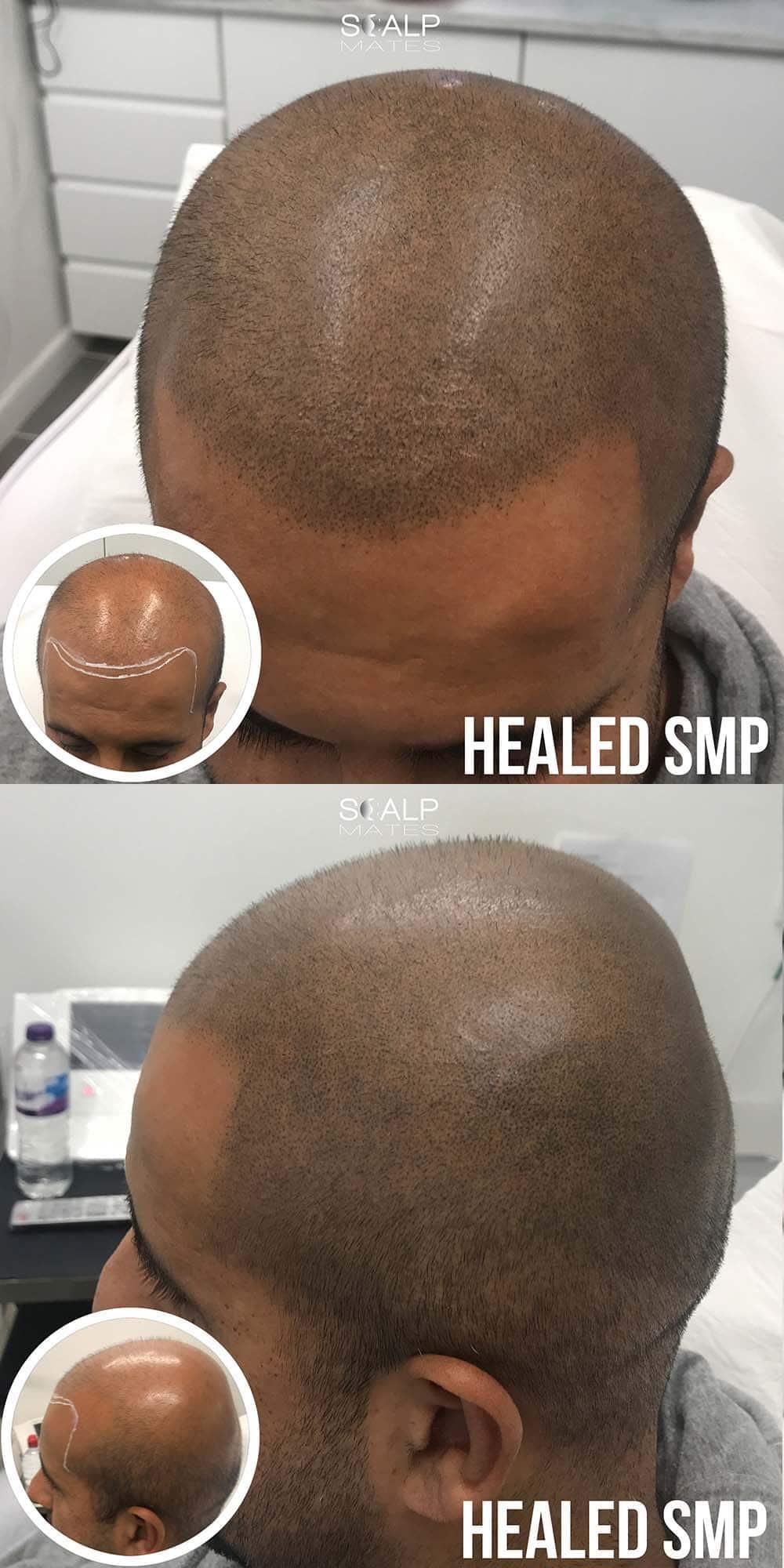 bald head tattoo to create a full head of buzzed hair